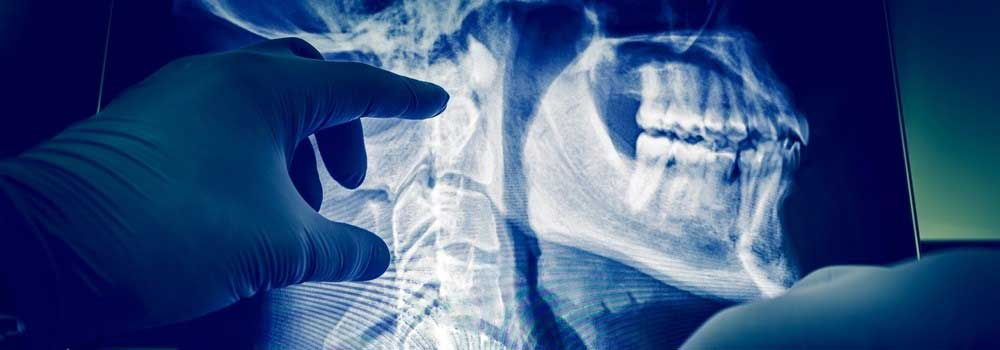 Radiology-Information-on-AmericasBestBlog